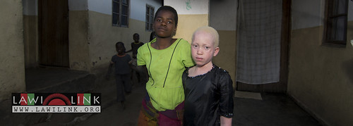"Persons with Albinism • <a style=""font-size:0.8em;"" href=""http://www.flickr.com/photos/132148455@N06/26636948834/"" target=""_blank"">View on Flickr</a>"