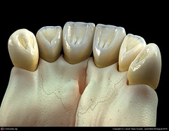 ligual of front teeth (Braces Dentist) Tags: tooth braces teeth dental dentist dentistry orthodontics denture upperteeth dentalbraces lowerteeth
