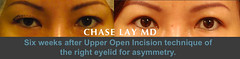 Slide12 (chaselaymd) Tags: asian eyelid