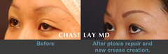 Slide2 (chaselaymd) Tags: eye asian droopy surgery sagging eyelid ptosis chaselaymd