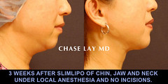 Slide19 (chaselaymd) Tags: face neck asian facelift necklift slimlipo chaselaymd