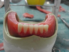denture (Braces Dentist) Tags: tooth braces teeth dental dentist dentistry orthodontics denture upperteeth dentalbraces lowerteeth