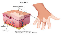 Vitiligo (yulianti8) Tags: autoimmune bilateral depigmentation dermatitis dermatology dermatosis disease face forearms genetic groin hair hands hereditary hypopigmentation immune leucoderma melanin melanocytes mucosal nails neck patches perinevoid pigment rash segmental skin system vitiligo white