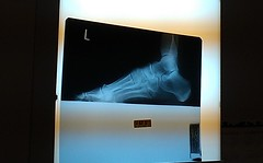 22 Days and Counting (Jill Clardy) Tags: me broken ouch boot foot photo office soft slow image cellphone cast xray jc bone left fracture healing android rhyme day73 couchpotato heal htc hobbling aircast orthopedists day73365 3652013 imag0571 365the2013edition 14mar13