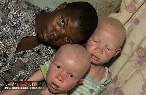 "Persons with Albinism • <a style=""font-size:0.8em;"" href=""http://www.flickr.com/photos/132148455@N06/26967460530/"" target=""_blank"">View on Flickr</a>"