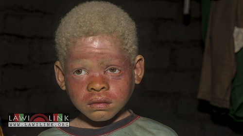 "Persons with Albinism • <a style=""font-size:0.8em;"" href=""http://www.flickr.com/photos/132148455@N06/26968057630/"" target=""_blank"">View on Flickr</a>"