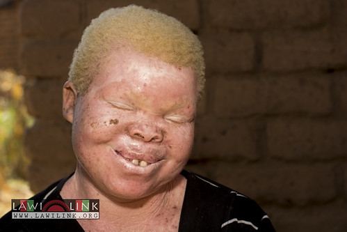 "Persons with Albinism • <a style=""font-size:0.8em;"" href=""http://www.flickr.com/photos/132148455@N06/27146006412/"" target=""_blank"">View on Flickr</a>"