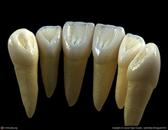 front teeth (Braces Dentist) Tags: tooth braces teeth dental dentist dentistry orthodontics denture upperteeth dentalbraces lowerteeth