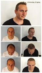Avoir un traitement de la greffe de cheveux à l'étranger, mais encore en Europe  http://fr.phaeyde.com/greffe-de-cheveux (phaeydeclinicfrance) Tags: hungary budapest clinic cheveux greffe phaeyde