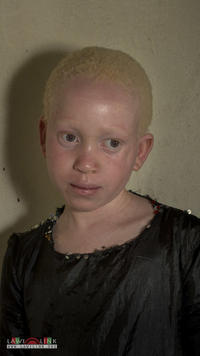 "Persons with Albinism • <a style=""font-size:0.8em;"" href=""http://www.flickr.com/photos/132148455@N06/27147007752/"" target=""_blank"">View on Flickr</a>"