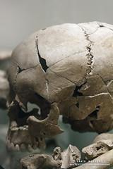 Bones (DMeadows) Tags: broken museum skull scotland edinburgh gallery break pieces display teeth exhibit crack national bones burial ritual bone davidmeadows dmeadows davidameadows dameadows