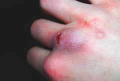 blmerke (Eiriella) Tags: blue hand purple skin finger knuckle injury bruise wound scar bruised hitting