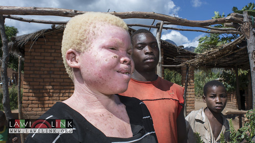 "Persons with Albinism • <a style=""font-size:0.8em;"" href=""http://www.flickr.com/photos/132148455@N06/27208783116/"" target=""_blank"">View on Flickr</a>"