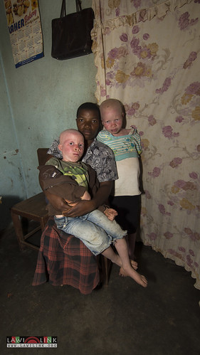 "Persons with Albinism • <a style=""font-size:0.8em;"" href=""http://www.flickr.com/photos/132148455@N06/27145788002/"" target=""_blank"">View on Flickr</a>"