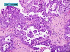 Qiao's Pathology: Serous Carcinoma of the Ovary () (Qiao's Pathology (Art and Science in Medicine)) Tags: microscopic pathology ovary adenocarcinoma qiaos serous