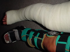 Long Leg Cast (LLC) & Long Leg Knee Brace (fcaster8) Tags: fetish leg bondage cast fiberglass knee llc brace restriction immobilize immobilization abasiophilia