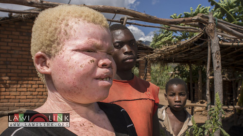 "Persons with Albinism • <a style=""font-size:0.8em;"" href=""http://www.flickr.com/photos/132148455@N06/26636079434/"" target=""_blank"">View on Flickr</a>"