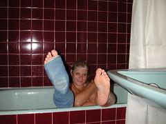 klik_dscn6476 (cb_777a) Tags: broken finland foot toes leg cast ankle