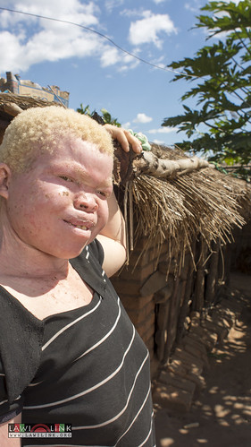 "Persons with Albinism • <a style=""font-size:0.8em;"" href=""http://www.flickr.com/photos/132148455@N06/27242884425/"" target=""_blank"">View on Flickr</a>"