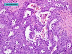 Qiao's Pathology: Serous Carcinoma of the Ovary (乔氏病理学:卵巢浆液性癌) (Qiao's Pathology (Art and Science in Medicine)) Tags: microscopic pathology ovary adenocarcinoma qiaos serous