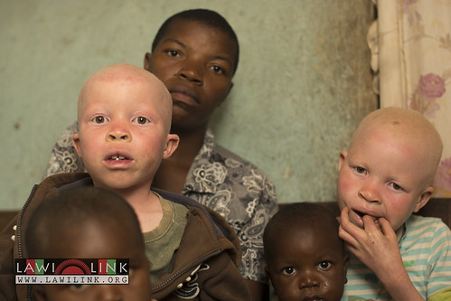 "Persons with Albinism • <a style=""font-size:0.8em;"" href=""http://www.flickr.com/photos/132148455@N06/26637112473/"" target=""_blank"">View on Flickr</a>"