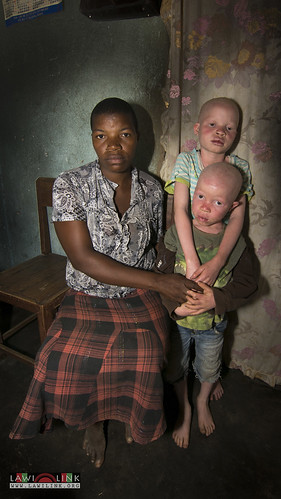 "Persons with Albinism • <a style=""font-size:0.8em;"" href=""http://www.flickr.com/photos/132148455@N06/27242791515/"" target=""_blank"">View on Flickr</a>"