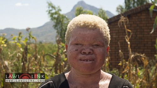 "Persons with Albinism • <a style=""font-size:0.8em;"" href=""http://www.flickr.com/photos/132148455@N06/27242992315/"" target=""_blank"">View on Flickr</a>"