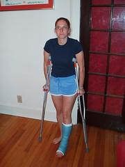 jblumen (cb_777a) Tags: usa broken foot toes leg cast crutches ankle