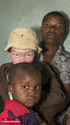 "Persons with Albinism • <a style=""font-size:0.8em;"" href=""http://www.flickr.com/photos/132148455@N06/26637114673/"" target=""_blank"">View on Flickr</a>"