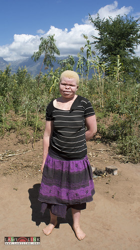 "Persons with Albinism • <a style=""font-size:0.8em;"" href=""http://www.flickr.com/photos/132148455@N06/27145867762/"" target=""_blank"">View on Flickr</a>"