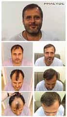 Opinions sur la transplantation de cheveux de patients précédents  http://fr.phaeyde.com/greffe-de-cheveux (phaeydeclinicfrance) Tags: hungary budapest clinic cheveux greffe phaeyde