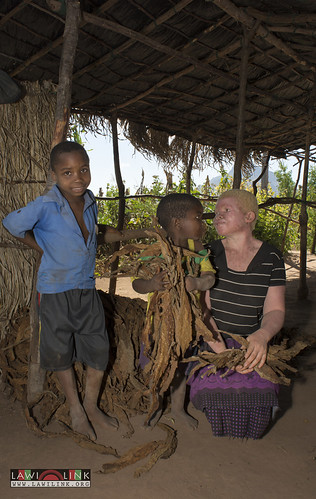 "Persons with Albinism • <a style=""font-size:0.8em;"" href=""http://www.flickr.com/photos/132148455@N06/27145857592/"" target=""_blank"">View on Flickr</a>"