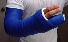 (fcaster8) Tags: fetish arm finger bondage cast fiberglass spica restriction lafs immobilize immobilization abasiophilia