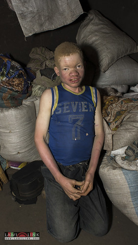 "Persons with Albinism • <a style=""font-size:0.8em;"" href=""http://www.flickr.com/photos/132148455@N06/27209971356/"" target=""_blank"">View on Flickr</a>"