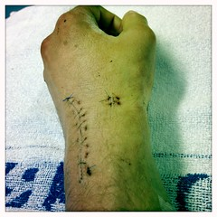 Wrist with stitches between casts I (billyrosendale) Tags: stitches wrist reconstruction