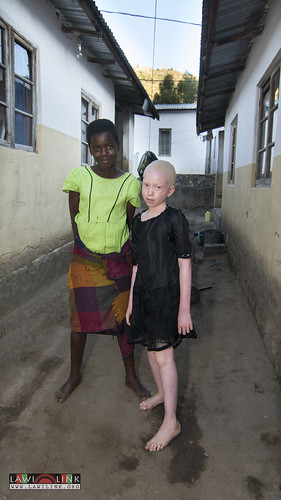 "Persons with Albinism • <a style=""font-size:0.8em;"" href=""http://www.flickr.com/photos/132148455@N06/27209647126/"" target=""_blank"">View on Flickr</a>"