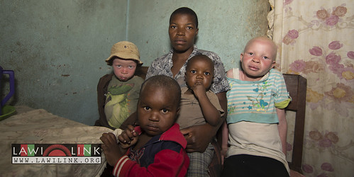 "Persons with Albinism • <a style=""font-size:0.8em;"" href=""http://www.flickr.com/photos/132148455@N06/26635888764/"" target=""_blank"">View on Flickr</a>"