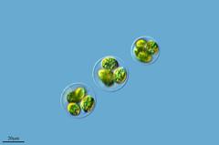 BURBUJAS GEMELAS, GLOEOCYSTIS GIGAS (PROYECTO AGUA** /** WATER PROJECT) Tags: espaa spain algae zamora microscopy alga microphotography larioja pondlife photomicrography microscopio lagodesanabria protist vidaoculta chlorophyceae microfotografa taxonomy:kingdom=plantae protistas microorganismos proyectoagua antonioguilln gloeocystis Taxonomy:species=gigas taxonomy:class=chlorophyceae fotografamicroscpica vidaocultadelagua fotografasmicroscpicas imgenesmicroscpicas lavidaocultadelagua thelifehiddenofthewater biodiversidadvirtual iesescultordaniel heliossanabria gloeocystisgigas taxonomy:order=sphaeropleales taxonomy:family=radiococcaceae taxonomy:genus=gloeocystis taxonomy:binomial=gloeocystisgigas