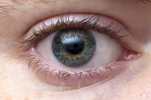 Crystalline Corneal Opacities by Thomas Shahan 3, on Flickr