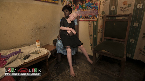 "Persons with Albinism • <a style=""font-size:0.8em;"" href=""http://www.flickr.com/photos/132148455@N06/27243979435/"" target=""_blank"">View on Flickr</a>"