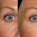 """Temple rejuvenation with Perlane Juvederm • <a style=""""font-size:0.8em;"""" href=""""http://www.flickr.com/photos/99747515@N07/9483027350/"""" target=""""_blank"""">View on Flickr</a>"""