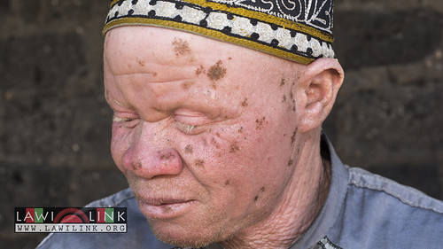 "Persons with Albinism • <a style=""font-size:0.8em;"" href=""http://www.flickr.com/photos/132148455@N06/27243579535/"" target=""_blank"">View on Flickr</a>"