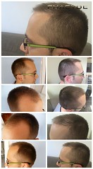 FUE cheveux service de transplantation à Budapest en Hongrie  http://fr.phaeyde.com/greffe-de-cheveux (phaeydeclinicfrance) Tags: hungary budapest clinic cheveux greffe phaeyde