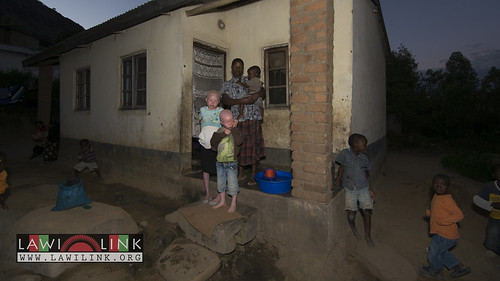 "Persons with Albinism • <a style=""font-size:0.8em;"" href=""http://www.flickr.com/photos/132148455@N06/27208576256/"" target=""_blank"">View on Flickr</a>"