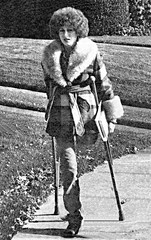 1970s SAK Student (jackcast2015) Tags: handicapped disabled disabledwoman cripledwoman onelegwoman oneleggedwoman monopede amputee legamputee crutches