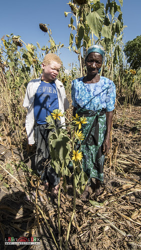 "Persons with Albinism • <a style=""font-size:0.8em;"" href=""http://www.flickr.com/photos/132148455@N06/26969498620/"" target=""_blank"">View on Flickr</a>"
