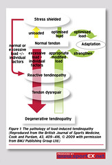 The pathology of load-induced tendinopathy (Reproduced from the British Journal of Sports Medicine, Cook and Purdam, 43, 409–416, © 2009 with permission from BMJ Publishing Group Ltd.) (sportEX journals) Tags: rehabilitation sportsmedicine sportex sportsinjury sportexmedicine tendinopathy