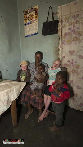 "Persons with Albinism • <a style=""font-size:0.8em;"" href=""http://www.flickr.com/photos/132148455@N06/27208551896/"" target=""_blank"">View on Flickr</a>"
