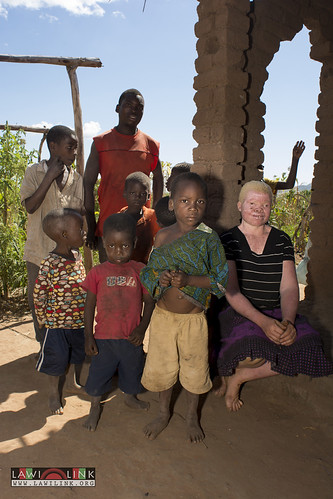 "Persons with Albinism • <a style=""font-size:0.8em;"" href=""http://www.flickr.com/photos/132148455@N06/26636088934/"" target=""_blank"">View on Flickr</a>"