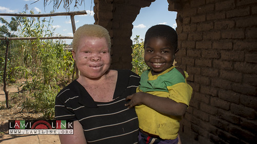"Persons with Albinism • <a style=""font-size:0.8em;"" href=""http://www.flickr.com/photos/132148455@N06/27145961132/"" target=""_blank"">View on Flickr</a>"